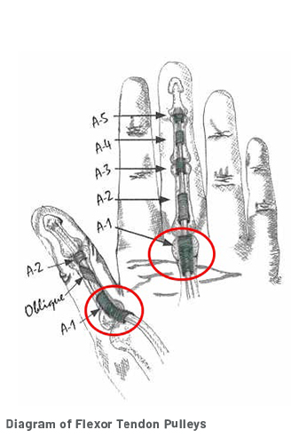 A diagram of a hand showing all of the flexor tendon pulleys