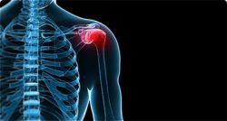 An image of a shoulder where red indicates the pain area