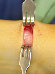 A surgical opening where the foreskin of a knee is peeled back revealing internal flesh