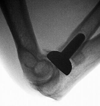 A MRI of an elbow with metal inserted