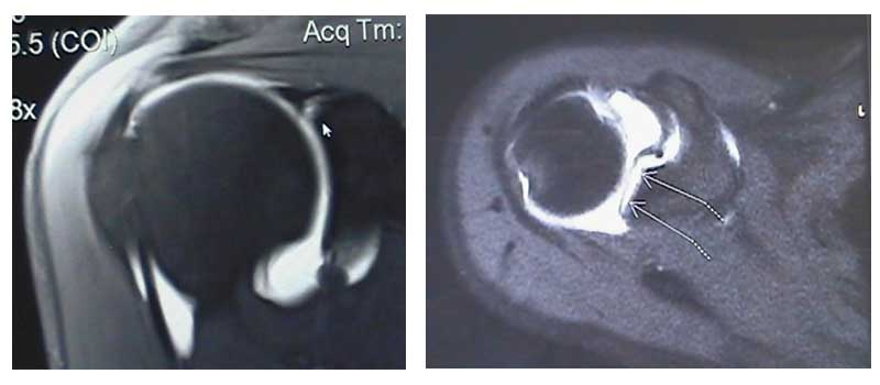 A MRI of a label tear