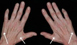 An image of two hands where arrows show intended areas within the hand