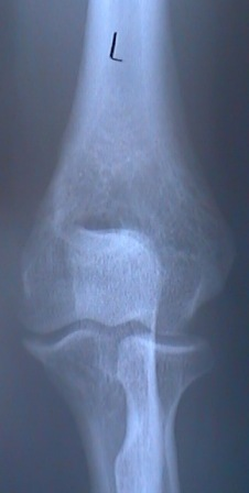 An xray of a normal elbow