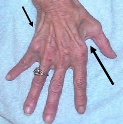 An image of a Hand where Severe Wasting is pointed out using arrows