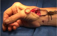 A surgical photo of a tendon joint being reconstructed