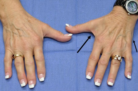 An image of two hands open side by side with arrows pointing to the right hand