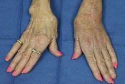 woman's hands effected by arthritis
