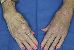 arthritis in woman's hands