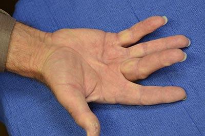 Before surgery Dupuytren's