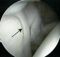 xray of shoulder arrow pointing to normal labrum