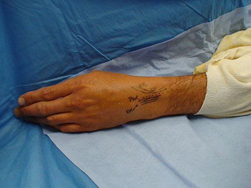 Percutaneus denervation on hand