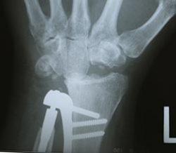 Arthroplasty